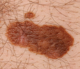 Skin Cancer | Be Clear on Cancer